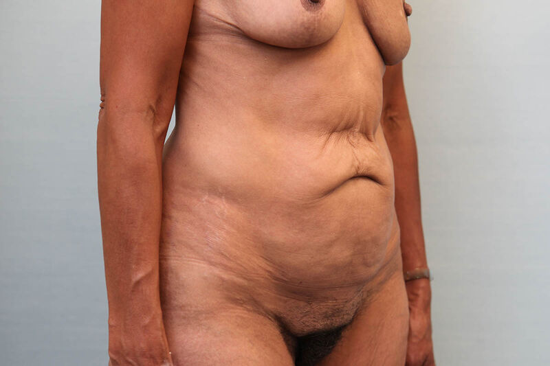 Abdominoplasty Before & After Patient Photo
