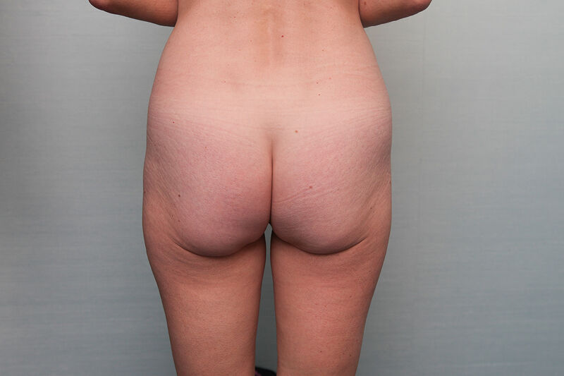 Buttock Contouring Before & After Patient Photo