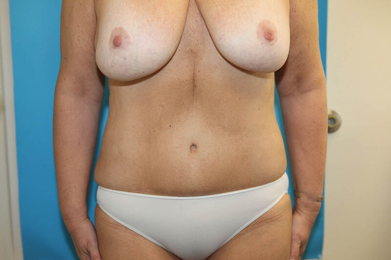 Body Contouring after Weight Loss (MWL) Before & After Patient Photo