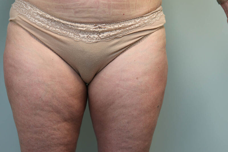 CoolSculpting Before & After Patient Photo