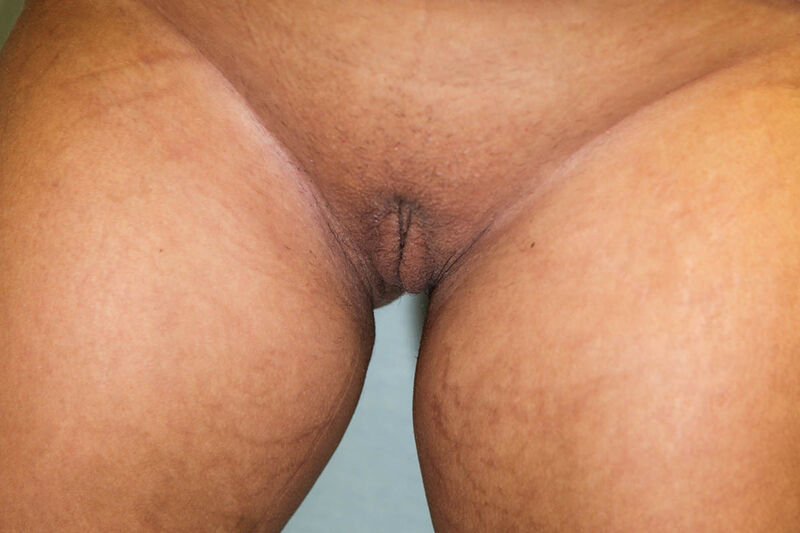 Labiaplasty Before & After Patient Photo