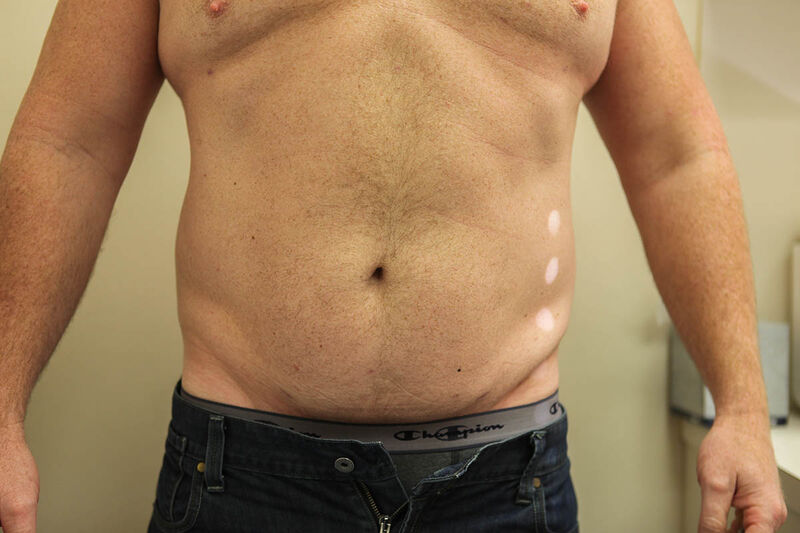Liposuction Abdomen Before & After Patient Photo