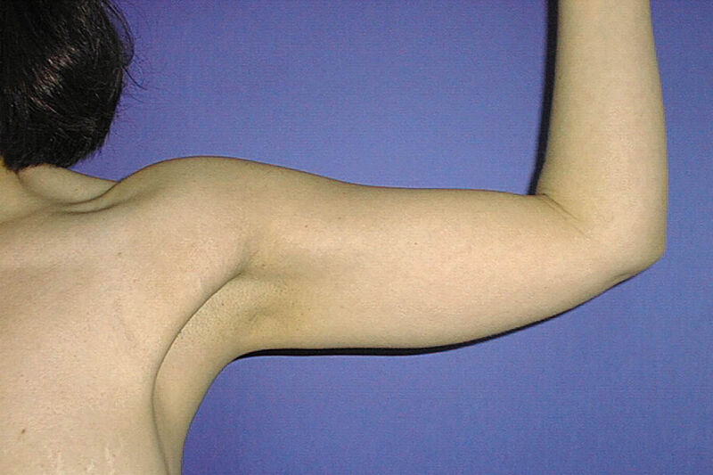 Liposuction Arms Before & After Patient Photo