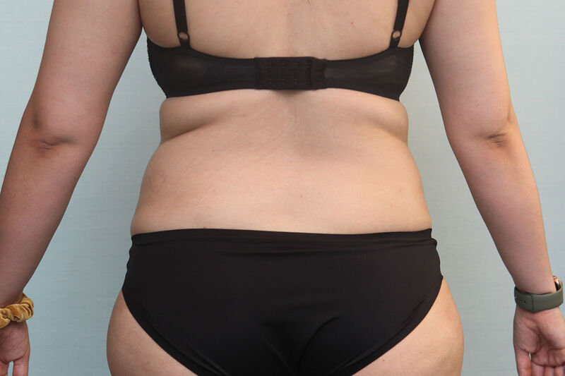 Liposuction Flank Before & After Patient Photo