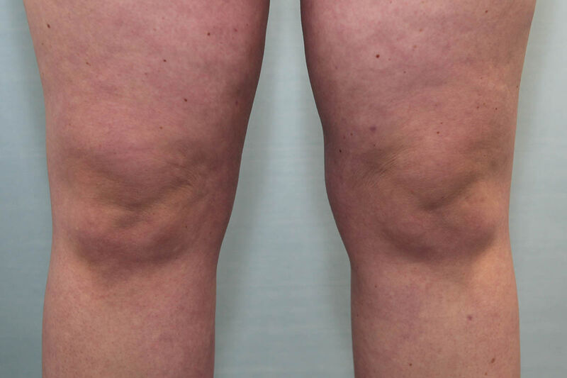 Liposuction Hips and Thighs Before & After Patient Photo