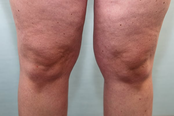 Liposuction Knees Before & After Patient Photo