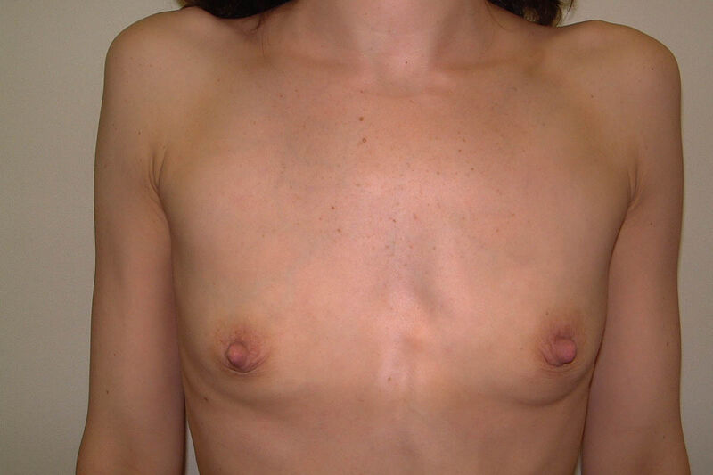 Breast Augmentation Before & After Patient Photo