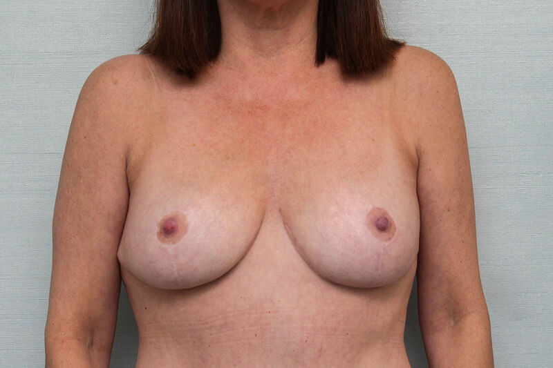 Breast Lift Before & After Patient Photo