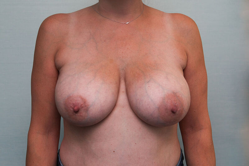 Breast Reduction Before & After Patient Photo