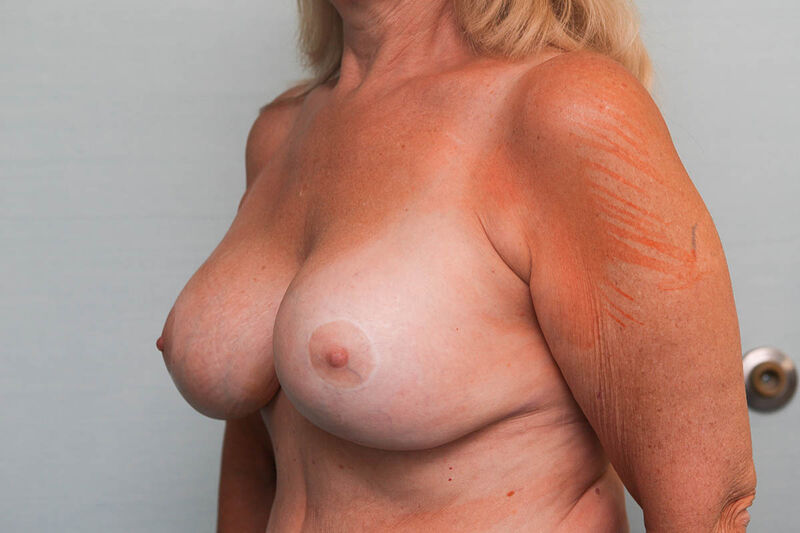 Revisionary Breast Surgery Before & After Patient Photo