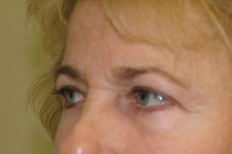 Brow Lift Before & After Patient Photo