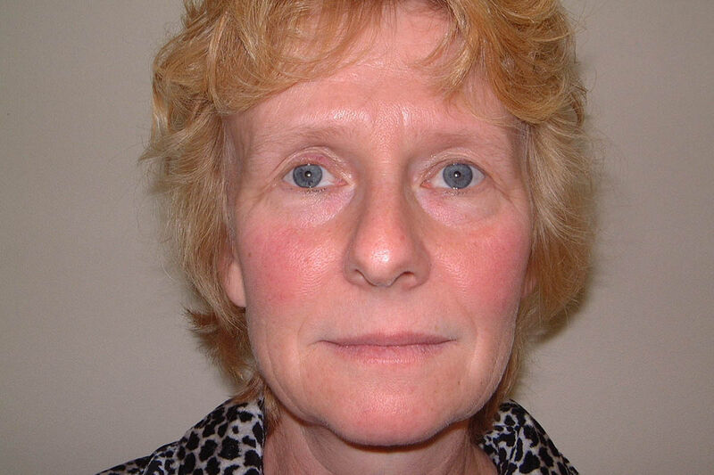 Facelift Before & After Patient Photo