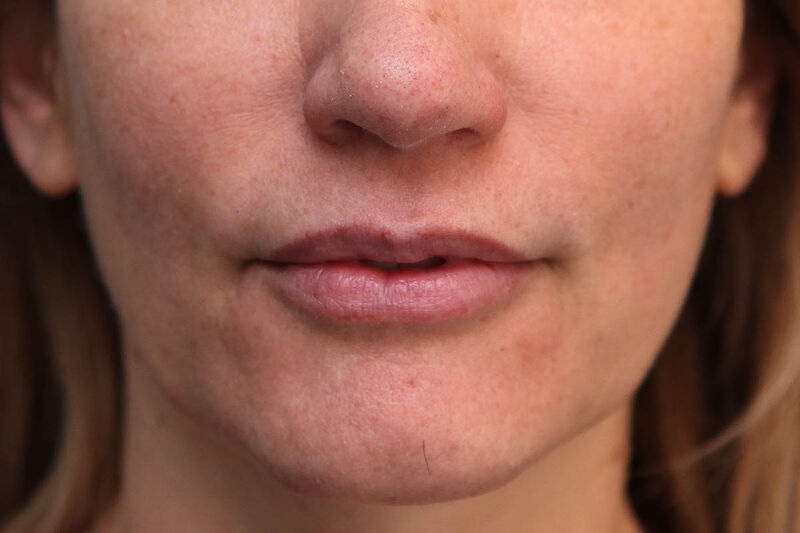 Lip Augmentation Before & After Patient Photo