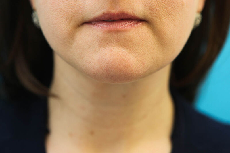 Liposuction Neck Before & After Patient Photo