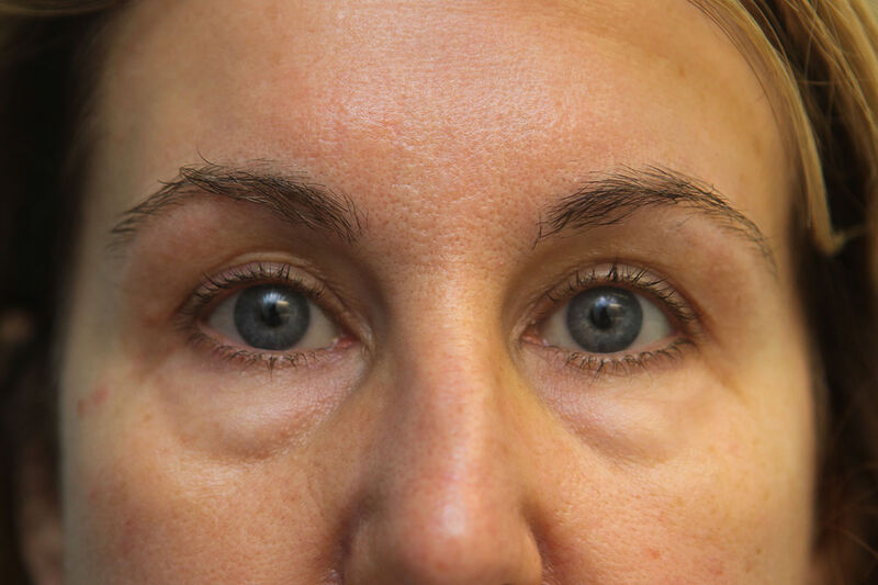 Lower Blepharoplasty Before & After Patient Photo