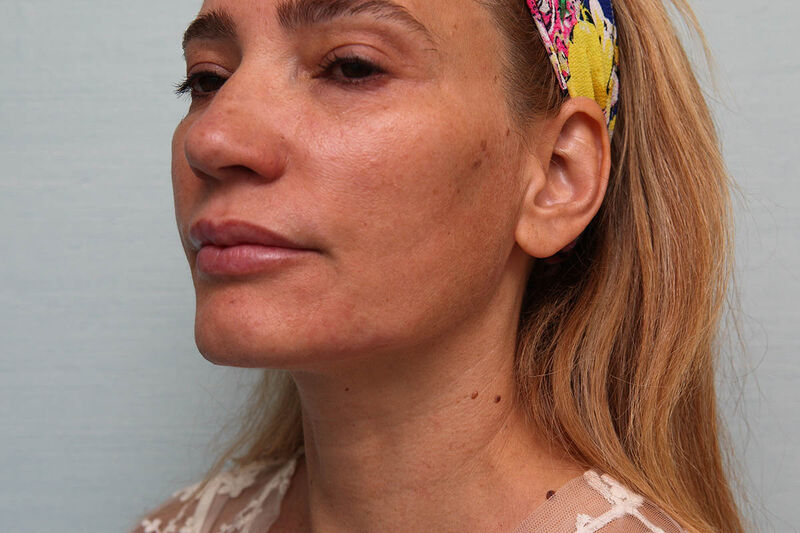 Nefertiti Lift Before & After Patient Photo