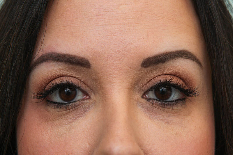 Upper Blepharoplasty Before & After Patient Photo