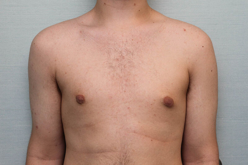 Gynecomastia Surgery Before & After Patient Photo