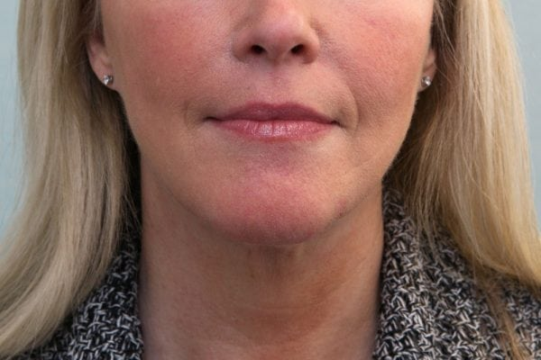 FaceTite Before & After Patient Photo