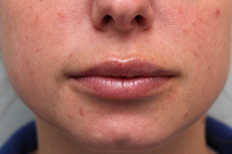 Fillers Before & After Patient Photo