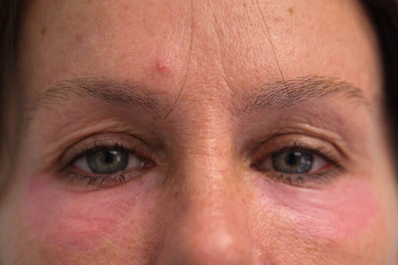 Laser Resurfacing Before & After Patient Photo