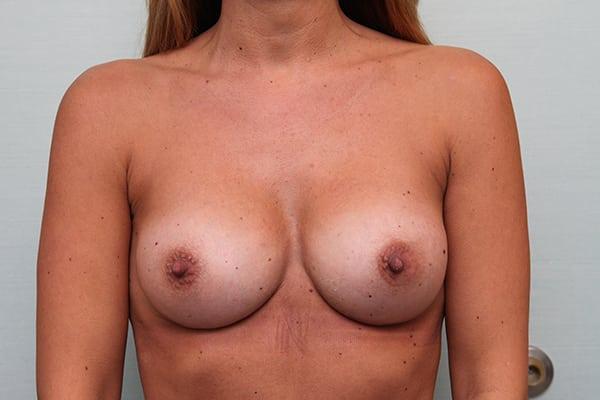Breast Augmentation - Plastic Surgery Guilford Connecticut