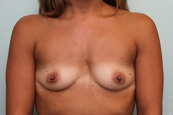 Natural Breast Augmentation Guilford, Connecticut