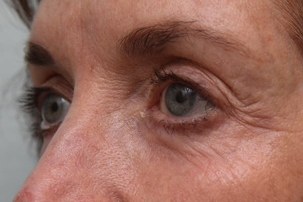 Laser Resurfacing Patient 04 Before And After Gallery