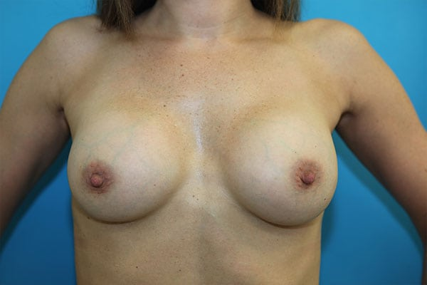 Breast augmentation in connecticut
