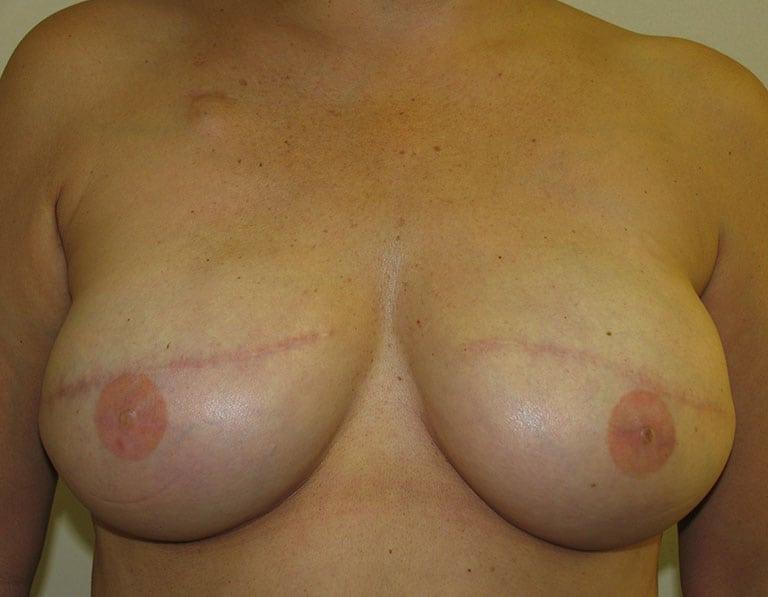 Breast Reconstruction Patient