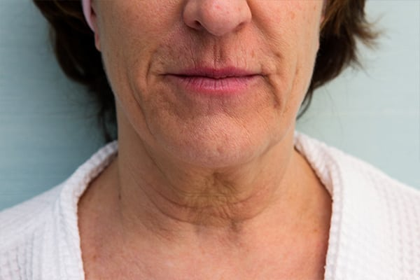 Facetite Patient 02 Before and After Gallery | Westport, CT | Dr