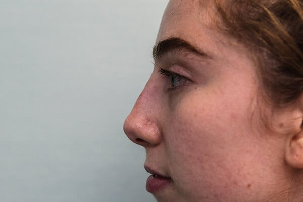 Liquid Rhinoplasty is an non-surgical nose job where injectables/fillers such as BOTOX, Juvederm, Restylane, Perlane and Belotero are injected to achieve the desired result without a scalpel.